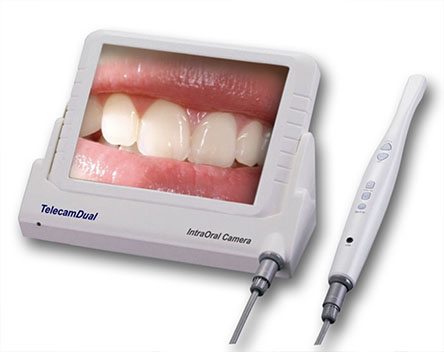 intraoral camera Mandarin